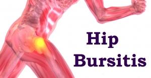 hip-bursitis