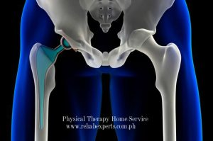 Home Instructions For Hip Replacement Patients